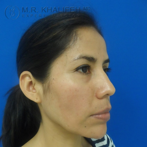 Fillers Gallery - Patient 3768588 - Image 4