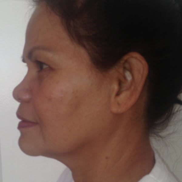 Ultherapy Facial Skin Tightening Gallery - Patient 3768639 - Image 2