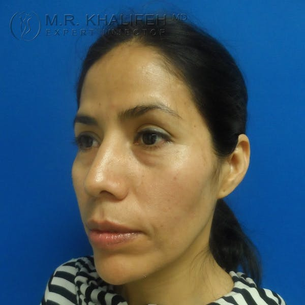 Fillers Gallery - Patient 3768588 - Image 5