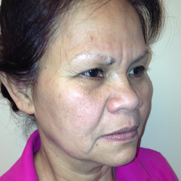 Ultherapy Facial Skin Tightening Gallery - Patient 3768639 - Image 3
