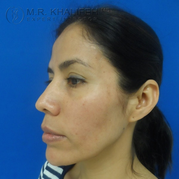 Fillers Gallery - Patient 3768588 - Image 6