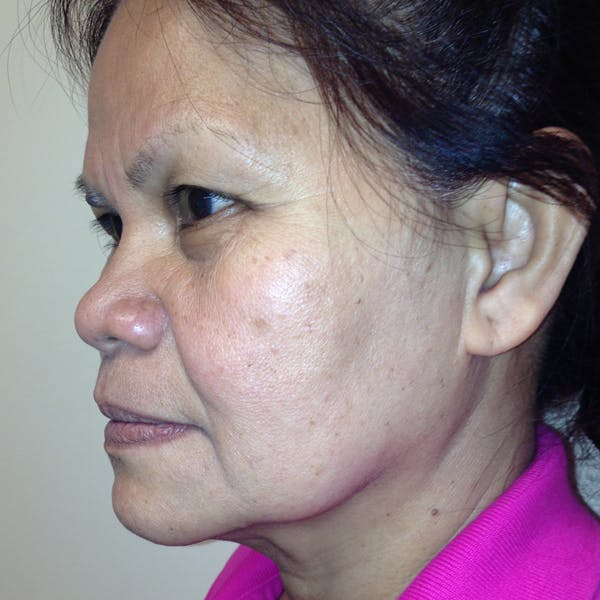 Ultherapy Facial Skin Tightening Gallery - Patient 3768639 - Image 7