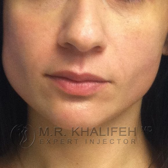 Fillers Gallery - Patient 3768611 - Image 2