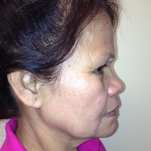 Ultherapy Facial Skin Tightening Gallery - Patient 3768639 - Image 9