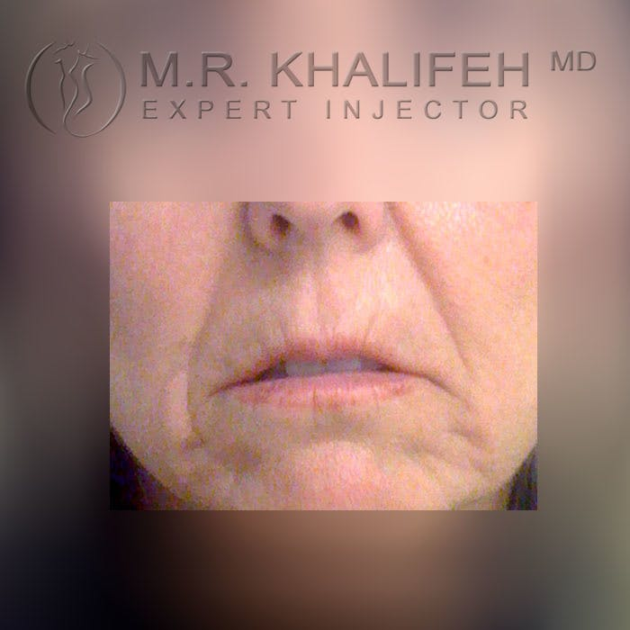 Fillers Gallery - Patient 3768636 - Image 1
