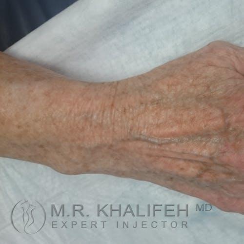 Hand Rejuvenation Gallery - Patient 3768654 - Image 1
