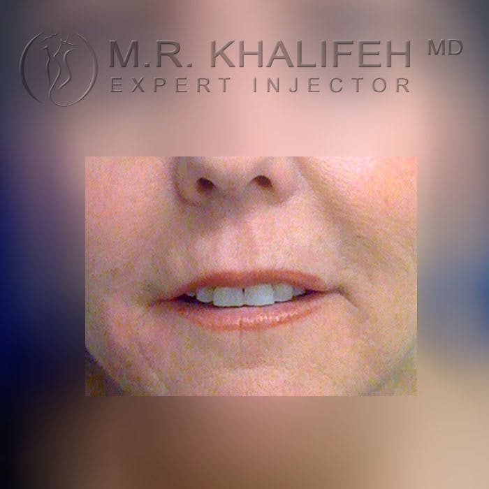 Fillers Gallery - Patient 3768636 - Image 2