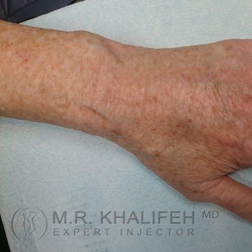 Hand Rejuvenation Gallery - Patient 3768654 - Image 2