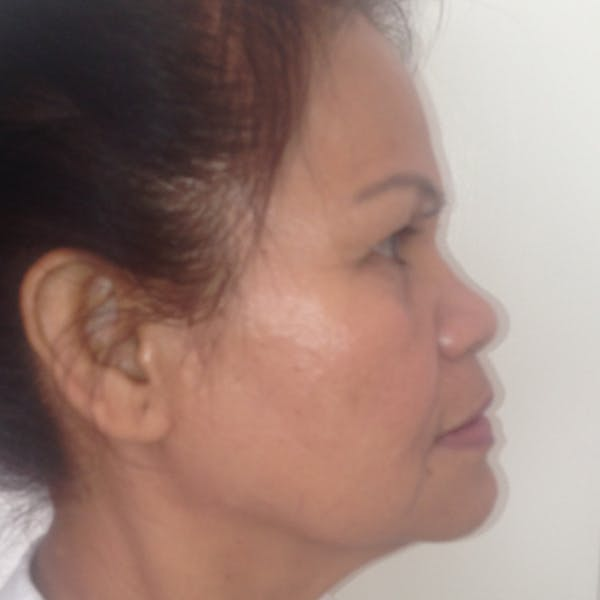 Ultherapy Facial Skin Tightening Gallery - Patient 3768639 - Image 10