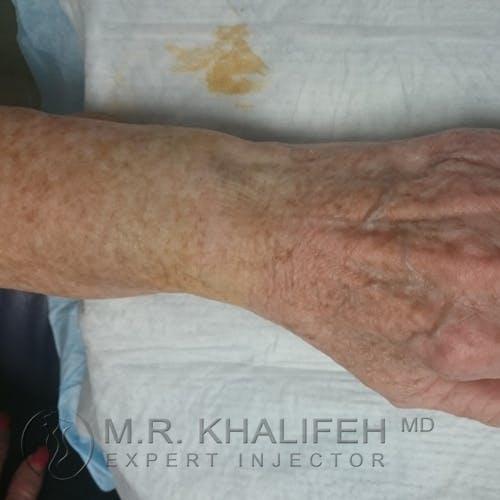 Hand Rejuvenation Gallery - Patient 3768654 - Image 3
