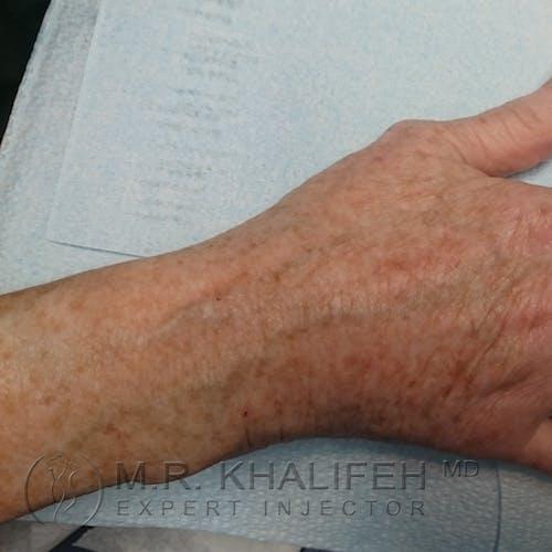 Hand Rejuvenation Gallery - Patient 3768654 - Image 4