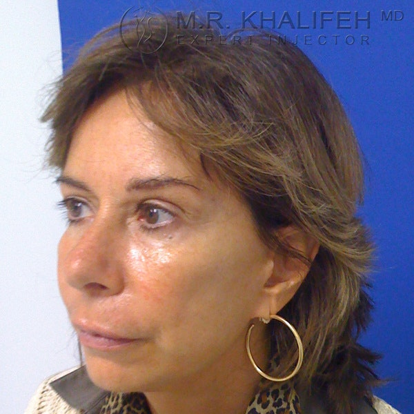Fillers Gallery - Patient 3768690 - Image 1