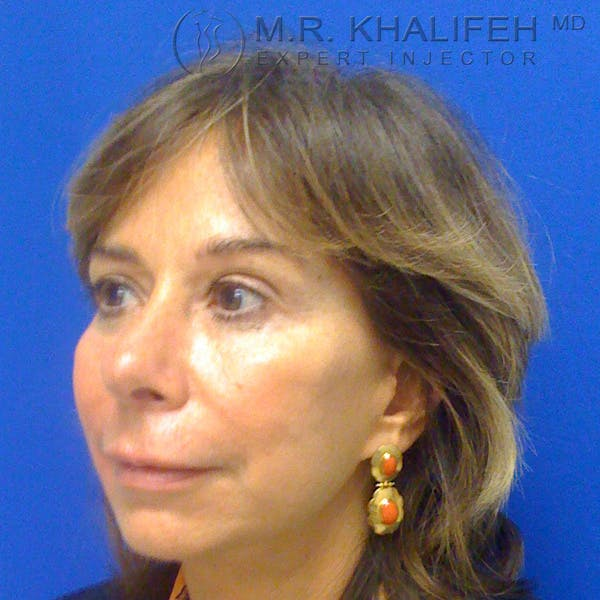 Fillers Gallery - Patient 3768690 - Image 2