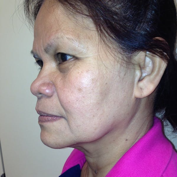Ultherapy Facial Skin Tightening Gallery - Patient 3768700 - Image 3