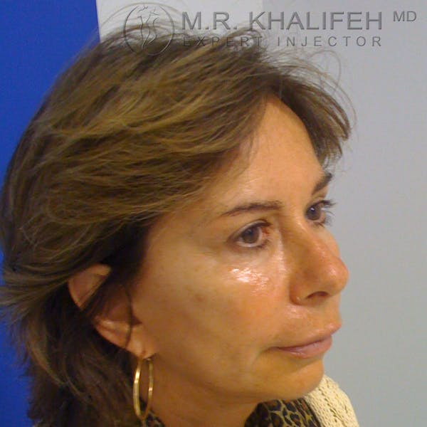 Fillers Gallery - Patient 3768690 - Image 3