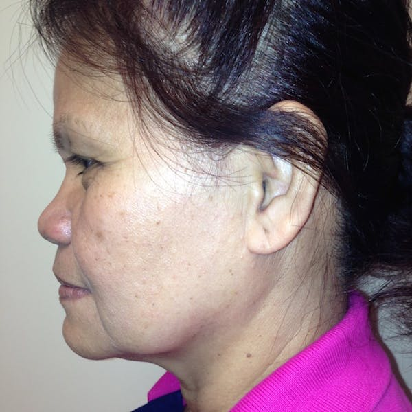 Ultherapy Facial Skin Tightening Gallery - Patient 3768700 - Image 5