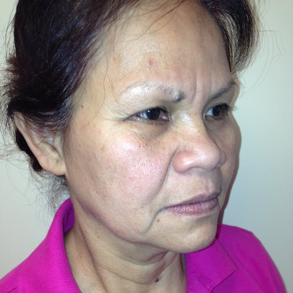 Ultherapy Facial Skin Tightening Gallery - Patient 3768700 - Image 7