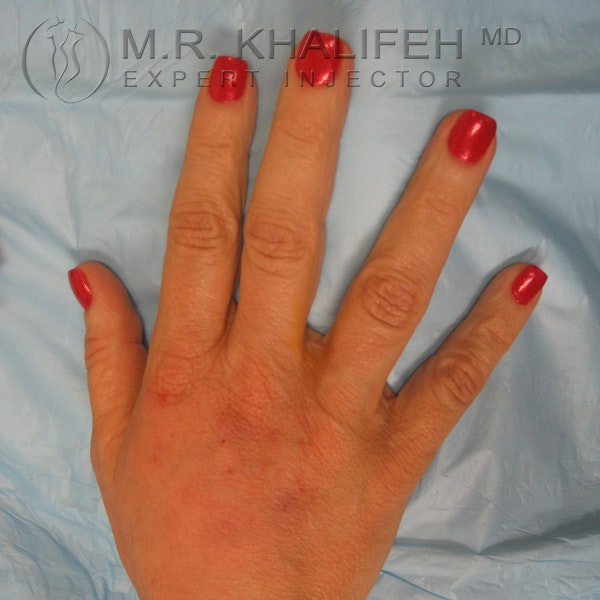 Fillers Gallery - Patient 3768760 - Image 1