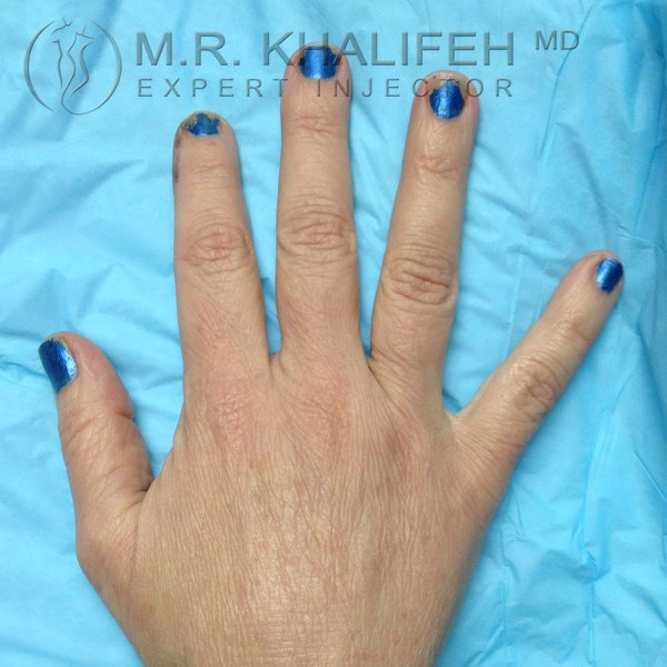 Fillers Gallery - Patient 3768760 - Image 2