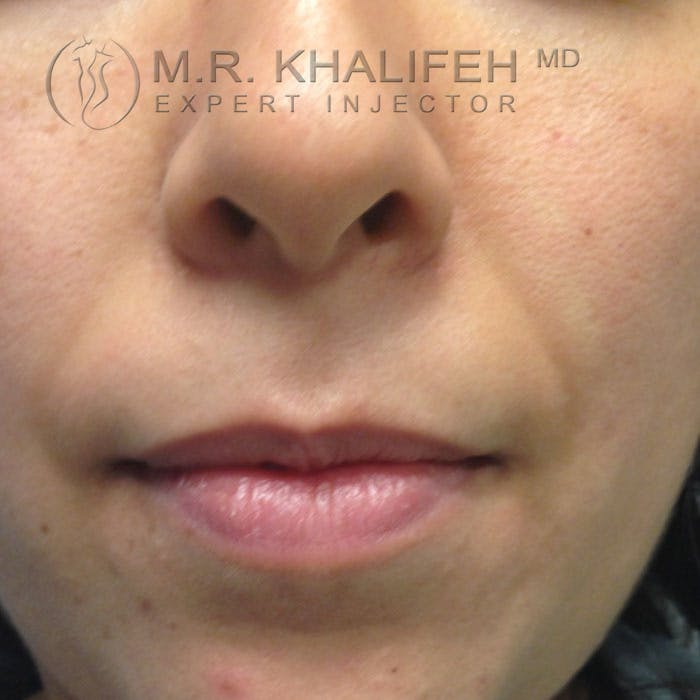 Fillers Gallery - Patient 3768778 - Image 1