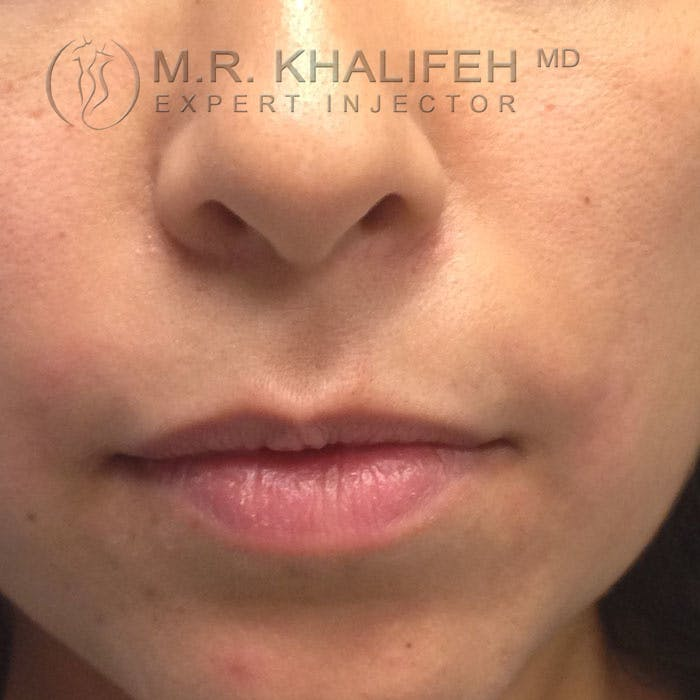 Fillers Gallery - Patient 3768778 - Image 2