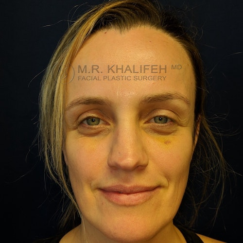 Fillers Gallery - Patient 3768889 - Image 2