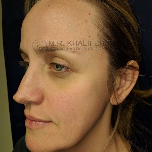 Fillers Gallery - Patient 3768889 - Image 3