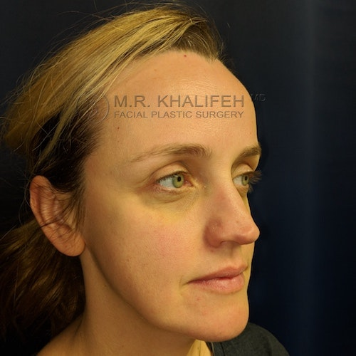 Fillers Gallery - Patient 3768889 - Image 5