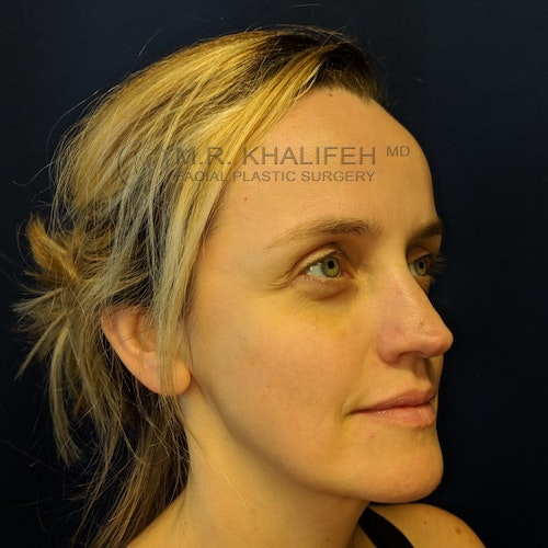 Fillers Gallery - Patient 3768889 - Image 6