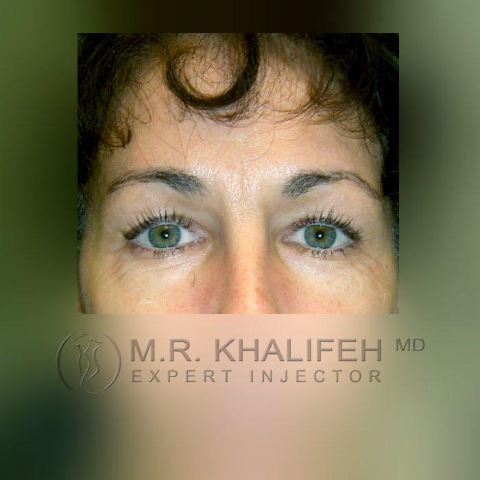 Botox & Dysport Gallery - Patient 3769947 - Image 1