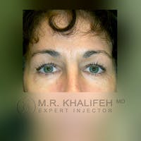 Botox & Dysport Gallery - Patient 3769947 - Image 1