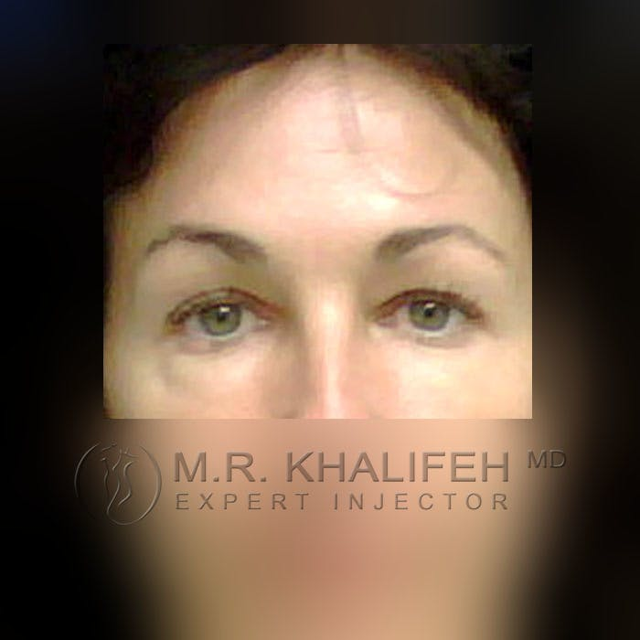 Botox & Dysport Gallery - Patient 3769947 - Image 2