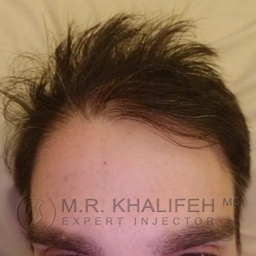 Botox & Dysport Gallery - Patient 3769993 - Image 2