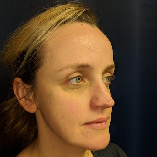 Botox & Dysport Gallery - Patient 3770083 - Image 3