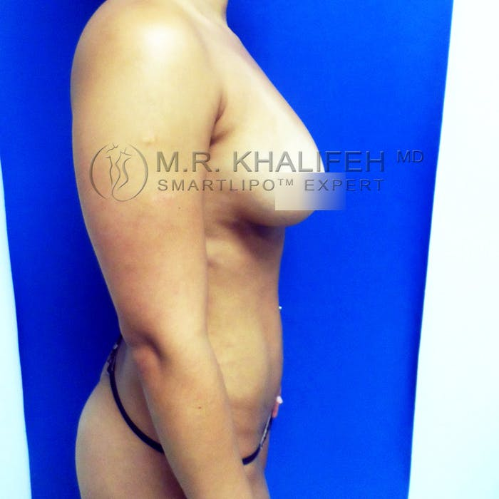 Abdominal Liposuction Gallery - Patient 3776250 - Image 6