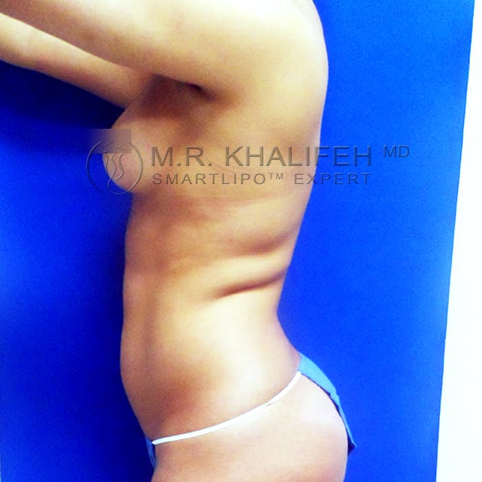 Abdominal Liposuction Gallery - Patient 3776250 - Image 9