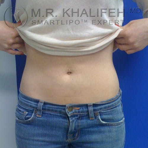 Abdominal Liposuction Gallery - Patient 3776300 - Image 2