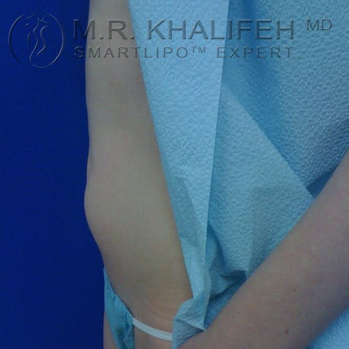Abdominal Liposuction Gallery - Patient 3776300 - Image 3