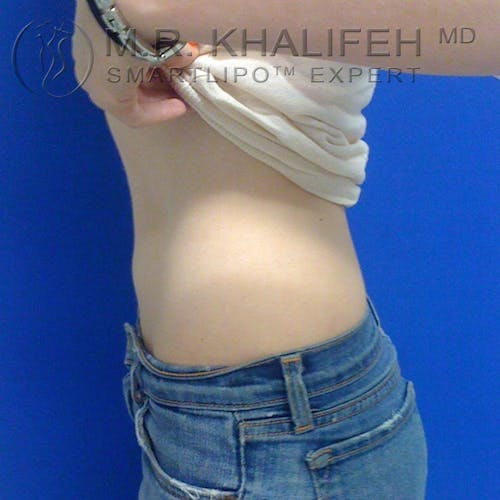 Abdominal Liposuction Gallery - Patient 3776300 - Image 4