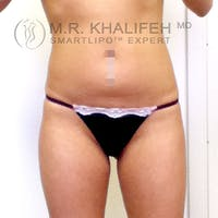 Abdominal Liposuction Gallery - Patient 3776361 - Image 1