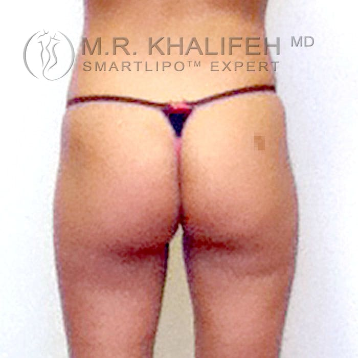 Abdominal Liposuction Gallery - Patient 3776361 - Image 5