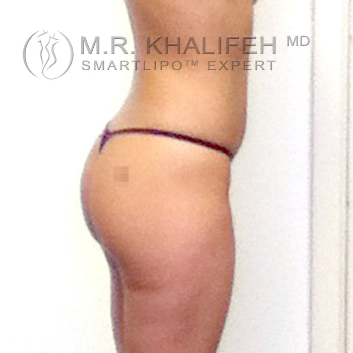 Abdominal Liposuction Gallery - Patient 3776361 - Image 7