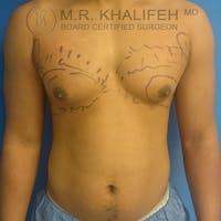 Gynecomastia Gallery - Patient 3776480 - Image 1