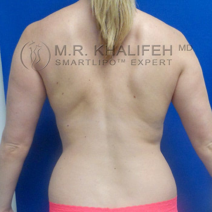 Abdominal Liposuction Gallery - Patient 3776462 - Image 5