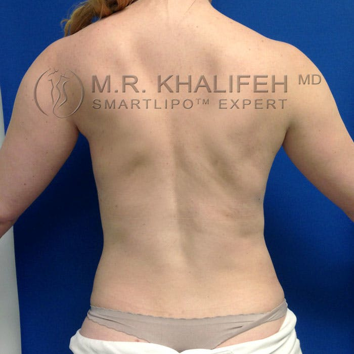 Abdominal Liposuction Gallery - Patient 3776462 - Image 6