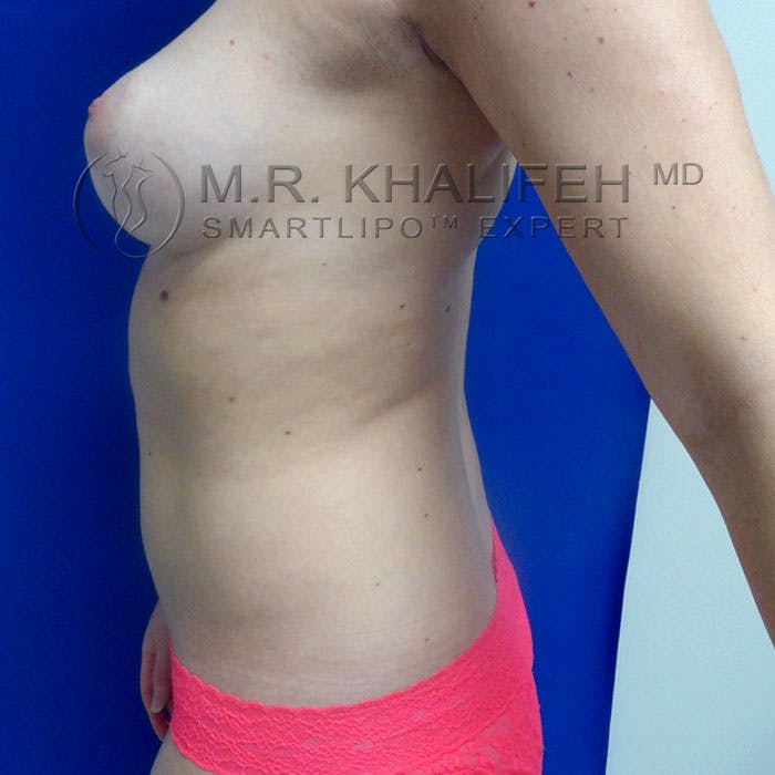 Abdominal Liposuction Gallery - Patient 3776462 - Image 7