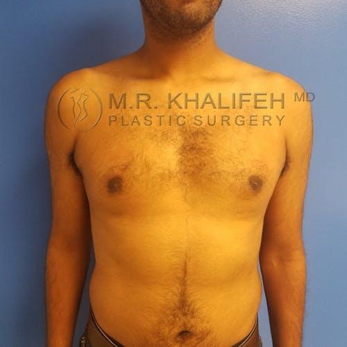 Gynecomastia Gallery - Patient 3776523 - Image 2