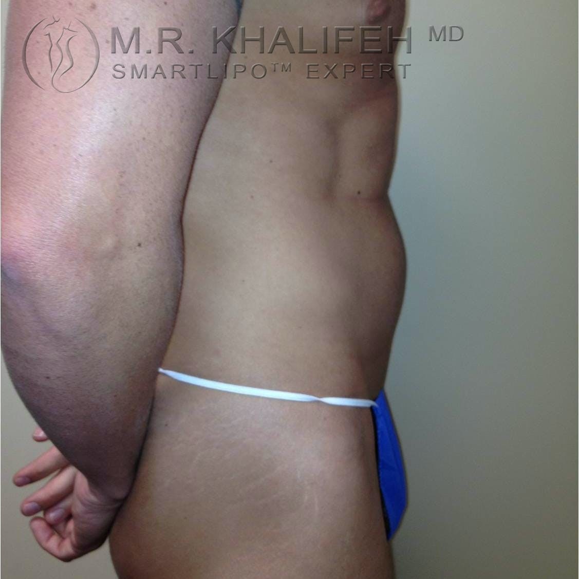 Male Liposuction Gallery - Patient 3776603 - Image 3