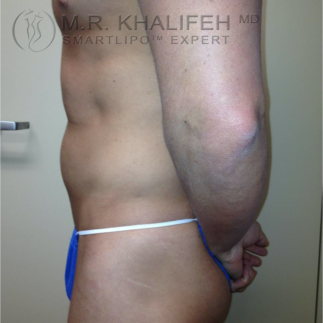 Male Liposuction Gallery - Patient 3776603 - Image 5