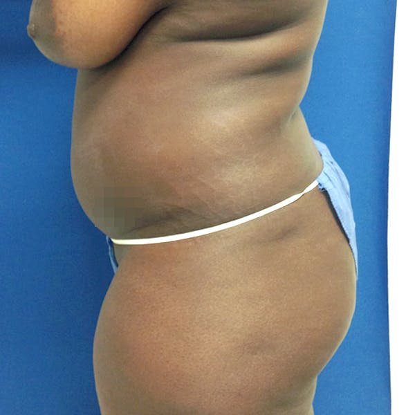 Abdominal Liposuction Gallery - Patient 3776647 - Image 5